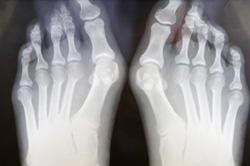 Bunion, toe joint disorder, foot joint problem, foot doctor, podiatry clinic