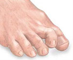 hammer toe, toe deformity,  mallet toe , podiatrist, foot bone problem, foot problem, podiatric clinic, foot doctor