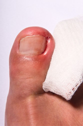 ingrown toenail, foot doctor, toenail pain, podiatrist,toenail problem, toenail disorder, ingrown nail, toenail surgery, foot clinic, podiatry clinic, toenail bleeding